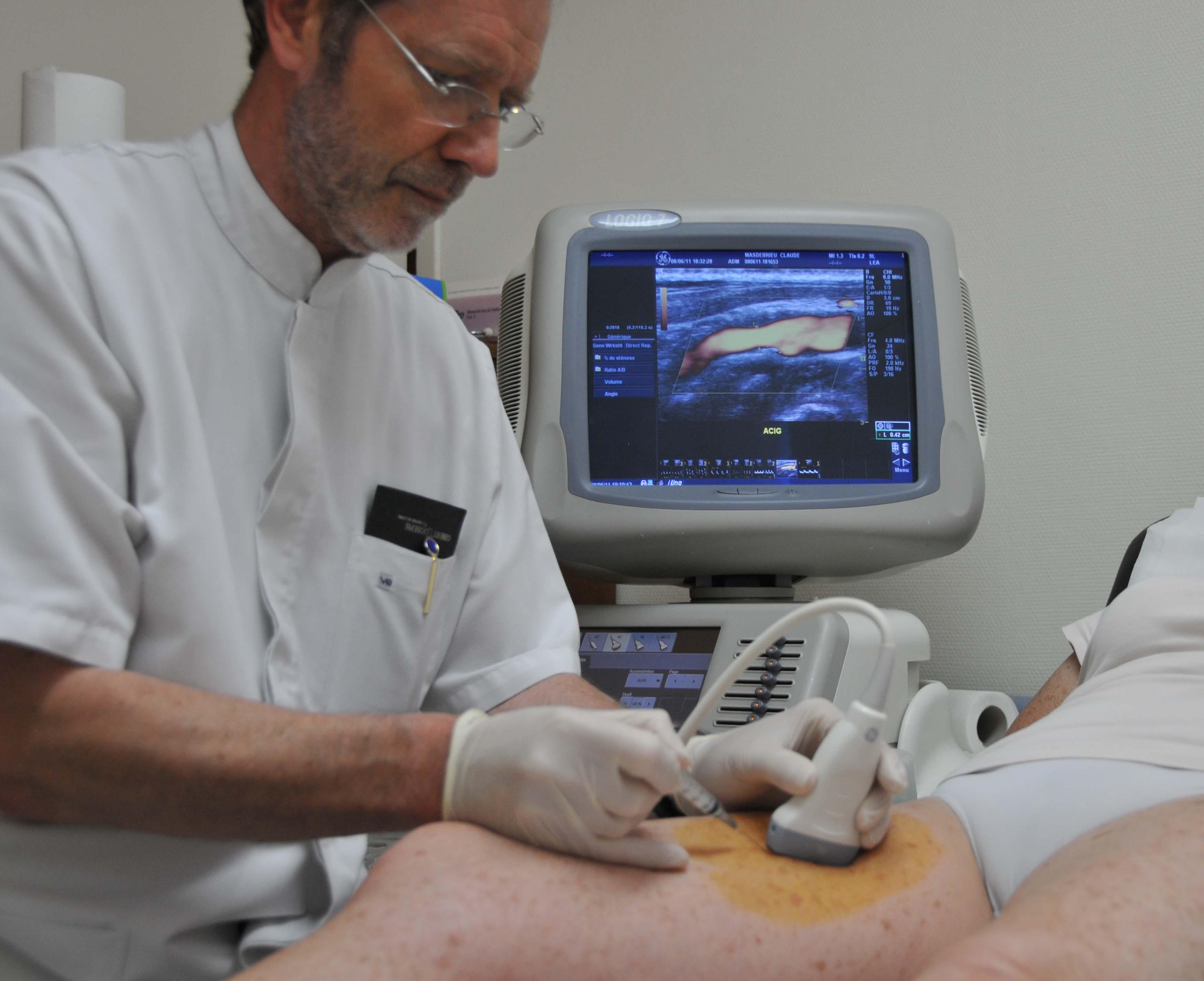 Le médecin qui traite lélargissement variqueux